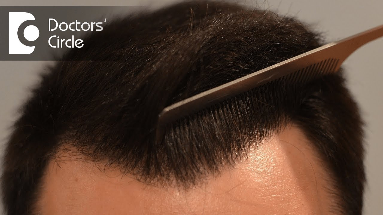 How many hair transplant grafts do you need to cover bald areas? - Dr   Deepak P Devakar