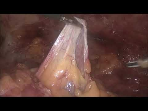 Лапароскопическое удаление кисты левой почки