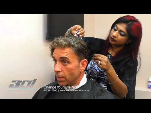 Hair Loss, Non Surgical Hair Replacement Systems | Toronto and the GTA