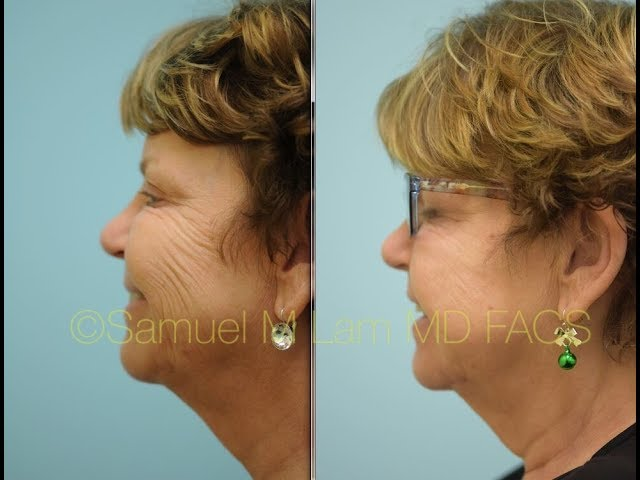 Revolutionary Mesobotox Treatment in Dallas, TX