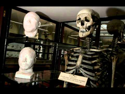 Burke and Hare real-life remains