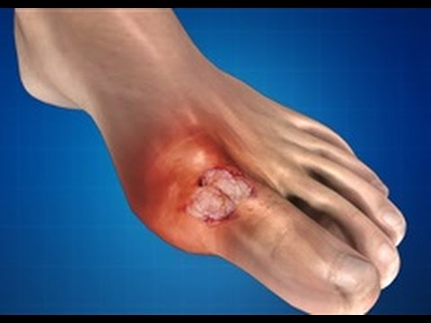 Image result for gout