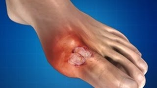 Gout: Treatment, Causes, Massage Therapy, Prevention