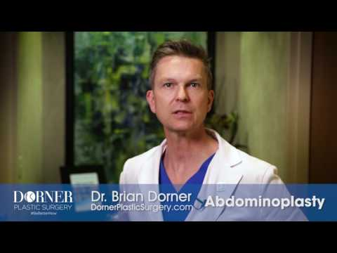 Dr. Dorner's Approach to Tummy Tucks (Abdominoplasty)