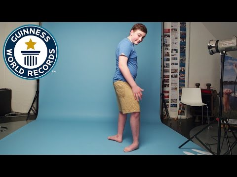 Teenager can make his feet face backwards - Guinness World Records