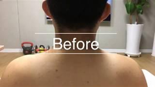 뉴스킨 갈바닉 어깨통증 관리 밀리언쑤기