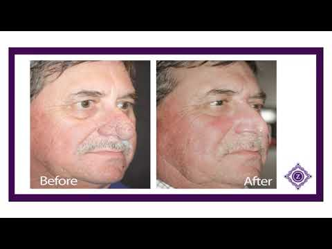 Derek S Story And Rhinophyma Nose Surgery View Time Lapse Surgery And Before And After Photos Youtube