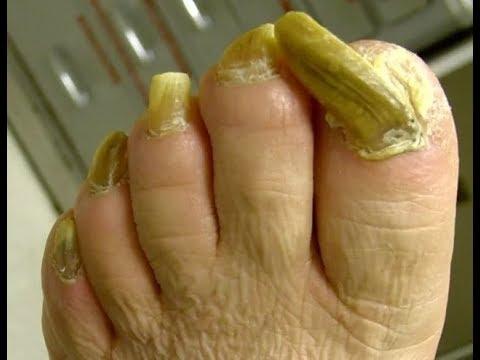 как вылечить грибок ногтей на ногах народными средствами