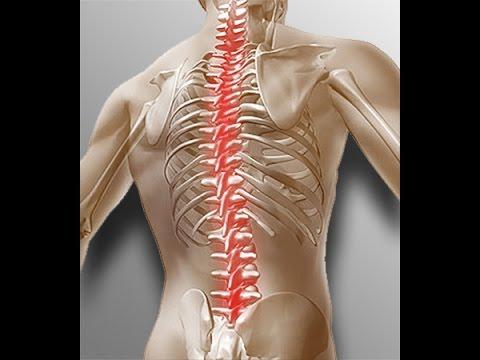 Головокружение после массажа при остеохондрозе