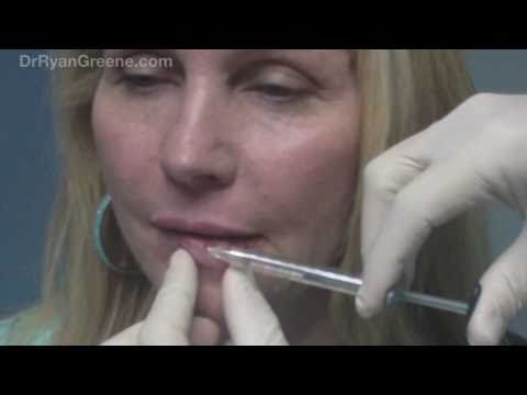 Lip Augmentation with Juvederm Injection - Fort Lauderdale