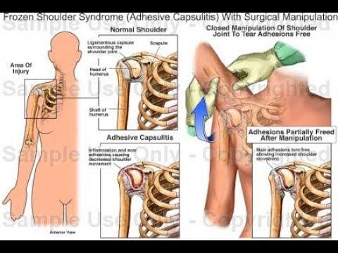 frozen shoulder treatment by Electro Acupuncture Treatment.
