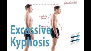 Excessive Kyphosis - Get rid of Hunchback