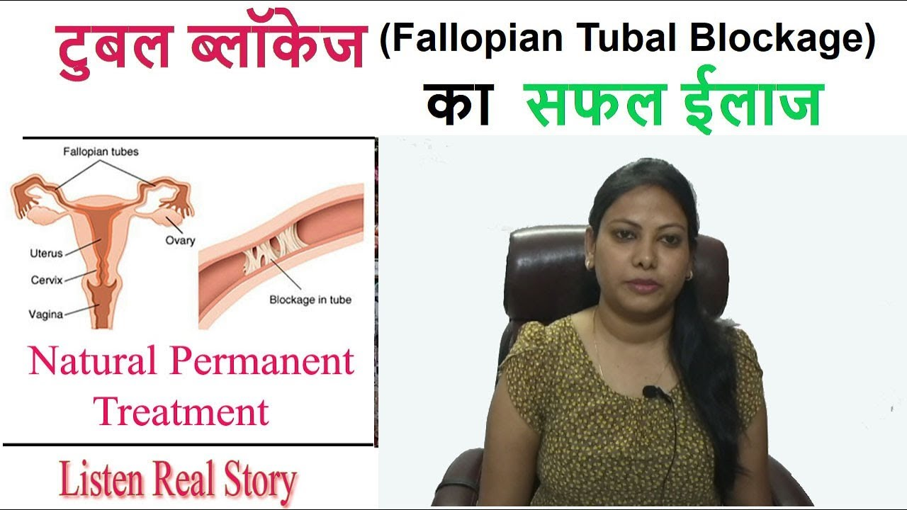 Fallopian Tubal Blockage का सफल ईलाज - Aasha Ayurveda Customer Review