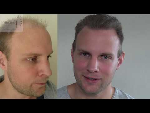 Hair Transplant Results 4280 FUT Grafts by Hattingen Hair Clinic