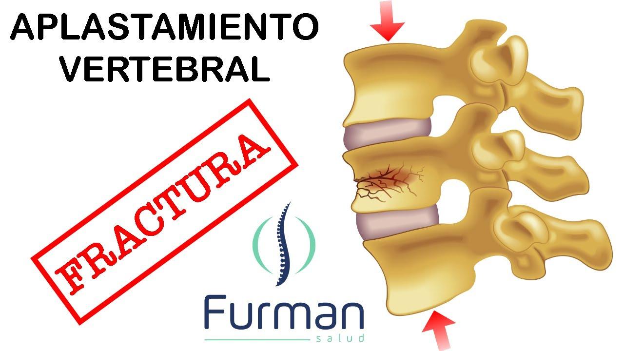 Aplastamiento vertebral