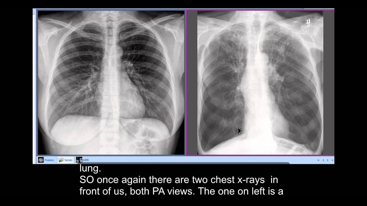 Chest x-rays - Smoker's Disease, COPD - unusual ...