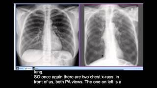 Chest x-rays - Smoker's Disease, COPD - unusual radiographic feature -Sabre Sheath Trachea