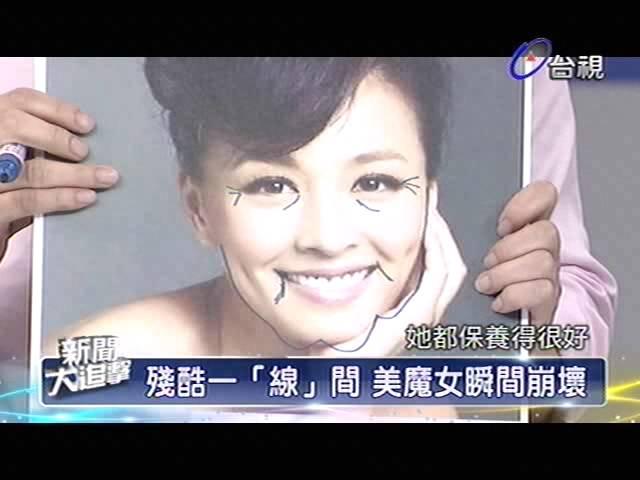 新聞大追擊 2013-07-06 pt.2/5 不老凍齡術