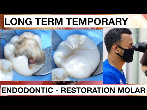 Dental Endodontic Direct Restoration Long Term Temporary Composite   General Dentist Griya RR