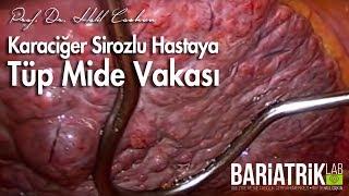 Prof. Dr. Halil Coşkun - Karaciğer Sirozlu Hastaya Tüp Mide Vakası