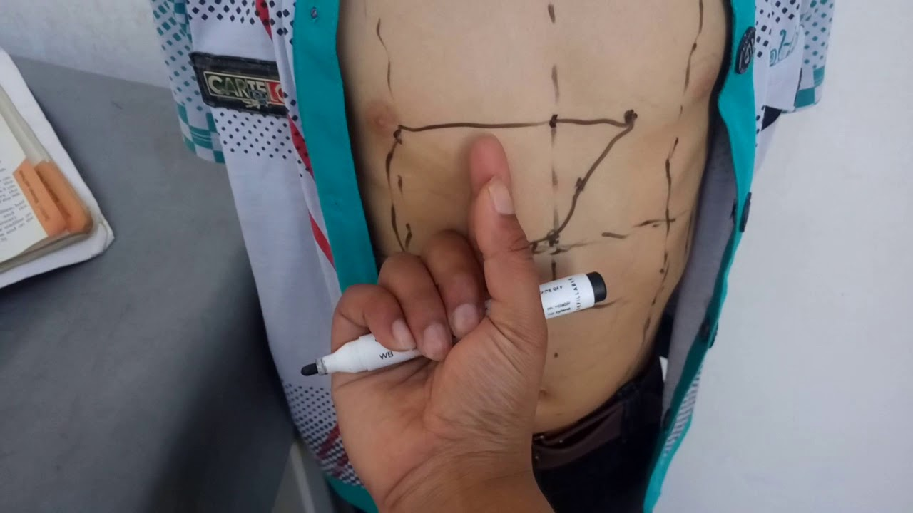 SURFACE MARKING of GALLBLADDER and BILE DUCT in easiest way - YouTube