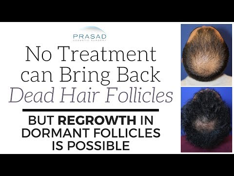 why-no-treatment-can-revive-dead-hair-follicles,-but-regrowth-of-dormant-follicles-is-possible