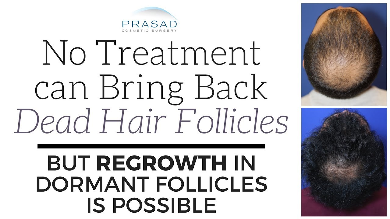 Why No Treatment Can Revive Dead Hair Follicles But Regrowth Of Dormant Is Possible