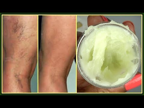 you-will-not-believe-what-i-use-to-get-rid-of-my-varicose-+-spider-veins-|khichi-beauty
