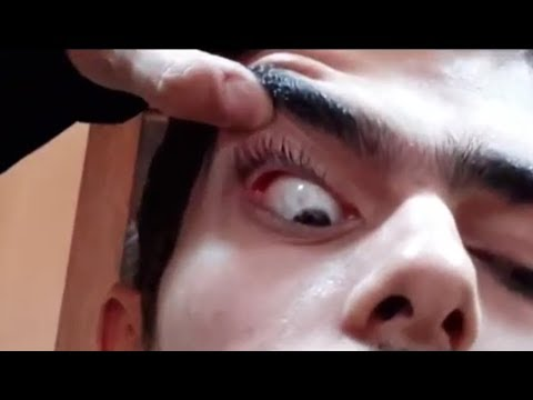 Clinical ophthalmology ُExamination  How to do
