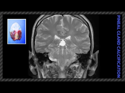 The Causes Of Pineal Gland Calcification (Life-Changing Information) [Part-1]