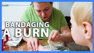 BANDAGING A BURN (5/14/18 - 5/16/18)