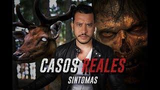 CIERVOS ZOMBIES CASOS REALES Y SÍNTOMAS
