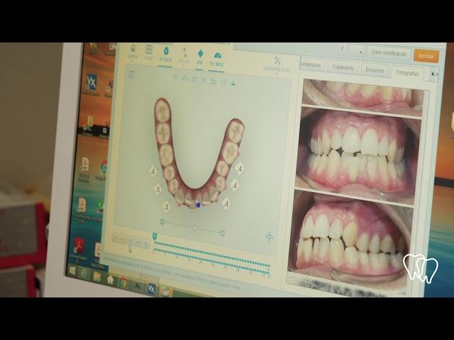 Clínica Meyden - Estudio Invisalign con paciente real realizado por la Dra. Sra Risoto