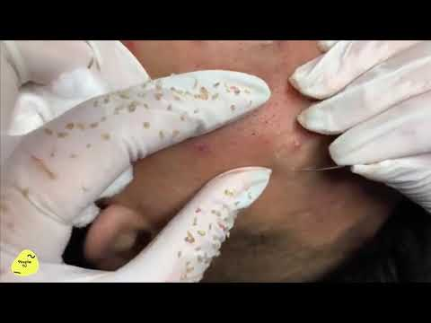 Acne  Extraction New