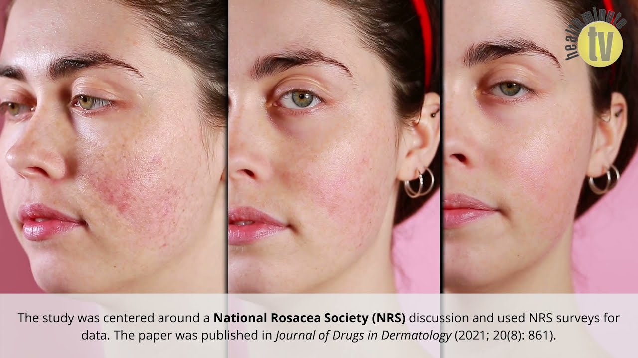 VIDEO: New study stresses importance of treating erythema in rosacea