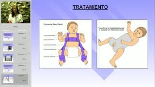 Dr EDUARDO KREMENCHUTZKY - SEMINARIOS DE INTEGRACION - DISPLASIA DE CADERA