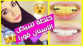 خلطة لتبييض الاسنان من أول استخدام - بدون مزح - لازم الكل يجربها!