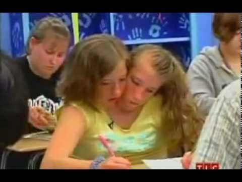 conjoined twins brittany and abby dating