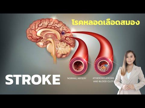 STROKE หลอดเลือดสมอง ต้องระวัง!