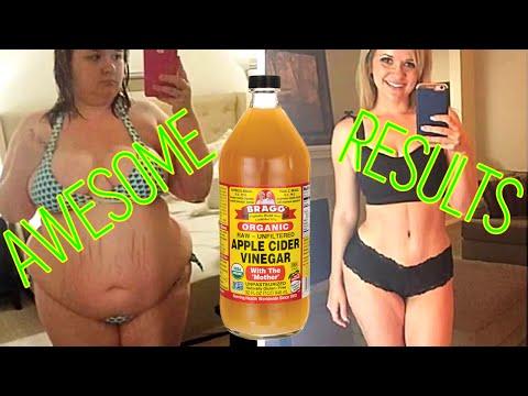 How to use Apple Cider Vinegar To Lose Weight |  braggs apple cider vinegar diet