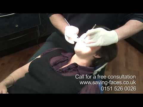Smile makeover South Africa to Liverpool cosmetic dentist