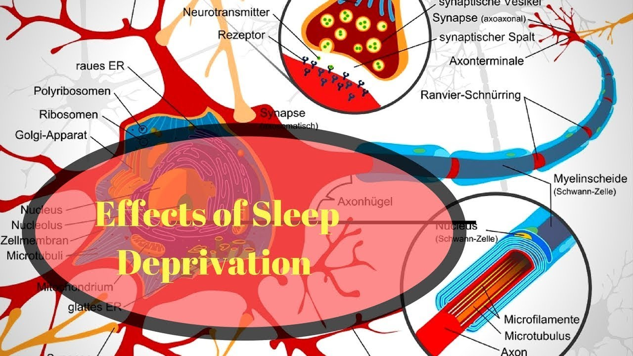 The Effects Of Sleep Deprivation On Your Body