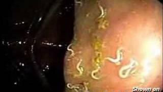 寄生蟲在胃裡