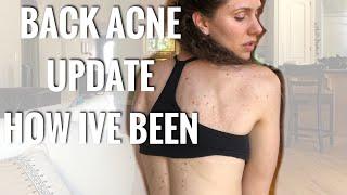 Back Acne  Update & How I'm Feeling Nowadays