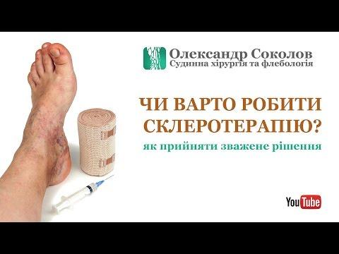Склеротерапия вен нижних конечностей: цена, отзывы