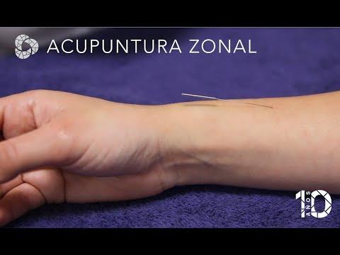 Ver en youtube el video Acupuntura zonal