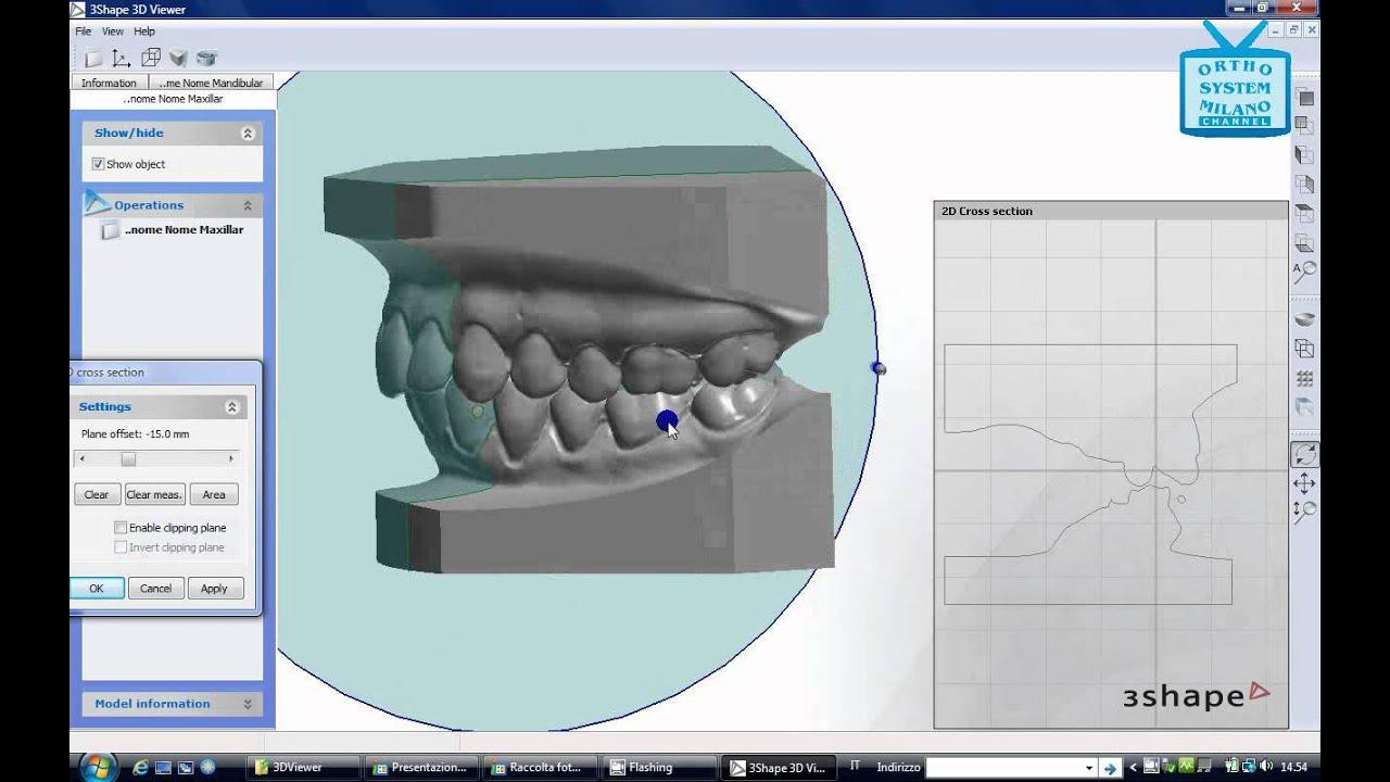 Modelli 3D digitali e Ortodonzia