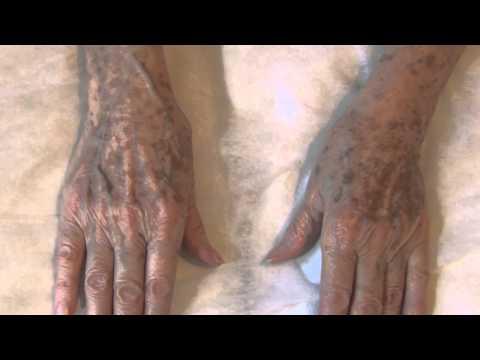 Lentigos solares en manos - Tratamiento con láser Helios (15082)