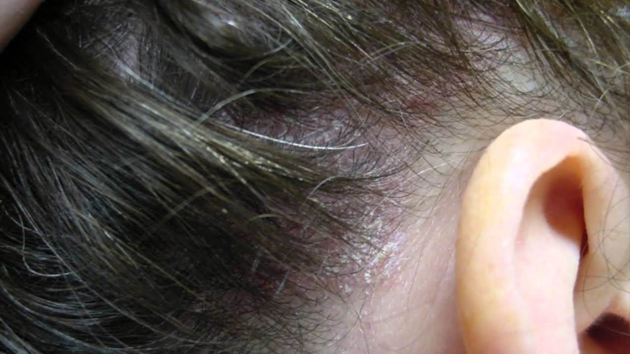Scalp Acne Causes, Symptoms and Treatment of Pimples on ...