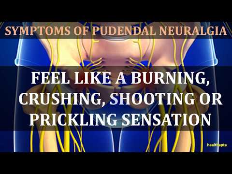 Intense Pain During Intercourse and Sitting - Dr. Elkwood Treats Pudendal Neuralgia.
